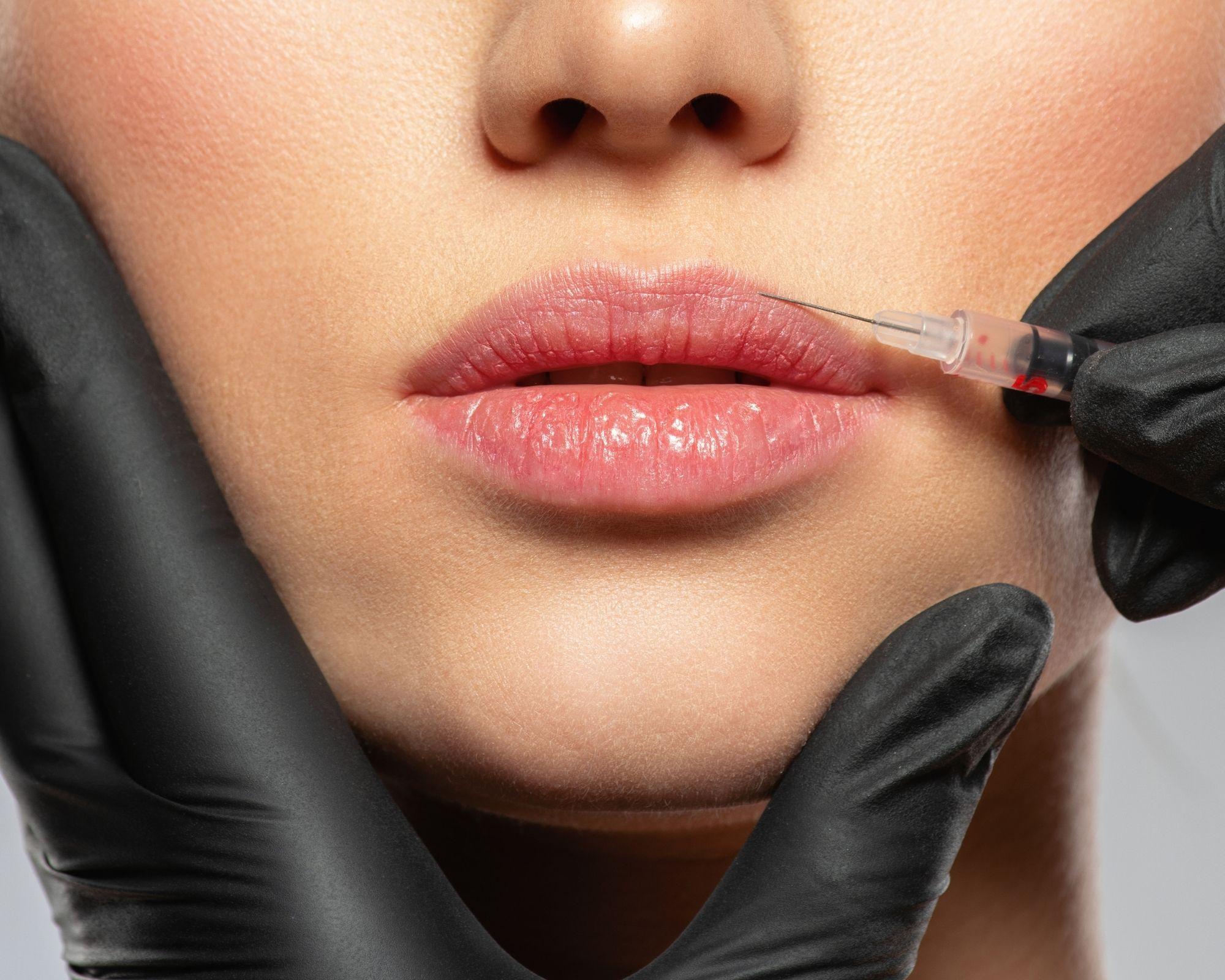 Filler lippen True Skin